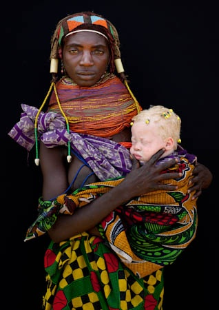 This is an interesting image (and concerning issue). A Mwila tribeswoman holds her daughter, who suffers from albinism, in Angola, South Central Africa. Although albinism is accepted in Angolan tribes, albinos face severe hardship and maltreatment in parts of Africa, with chairman of the Albino Association of Kenya, Isaac Mwaura, reporting that roughly 90 percent of albino children are raised by single mothers as a result of their fathers' mistaken belief that their wives have had an affair…