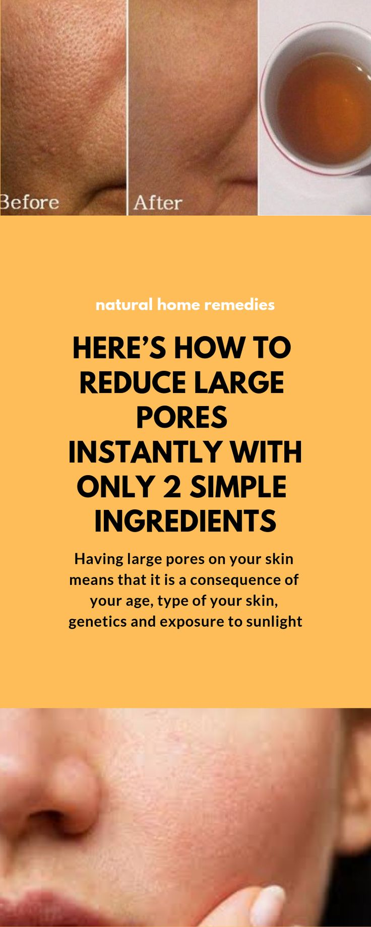 HERE'S HOW TO REDUCE LARGE PORES INSTANTLY WITH ONLY 2 SIMPLE INGREDIENTS