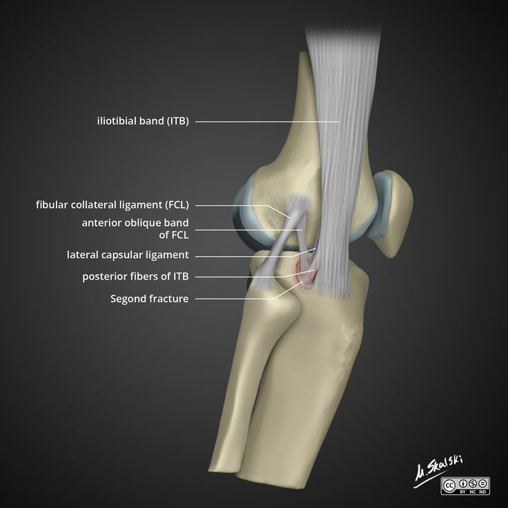 ACL Injury: What to Know