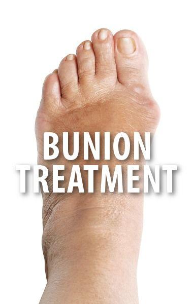#bunions