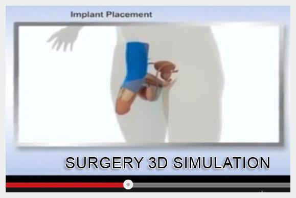 Non-Surgical Penile Enlargement San Jose Penile