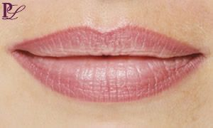 permanent lip liner before and after - Google Search