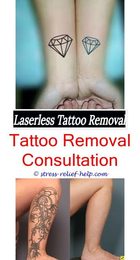 laser tattoo removal price who can do a tattoo removal - can you get ...