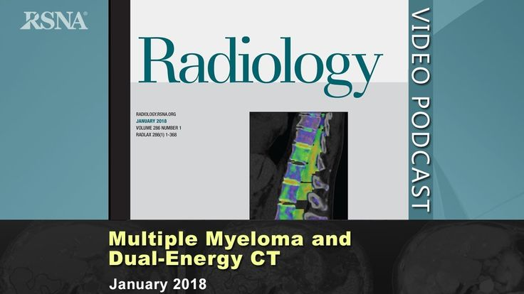 Multiple Myeloma and Dual-Energy CT (January 2018)