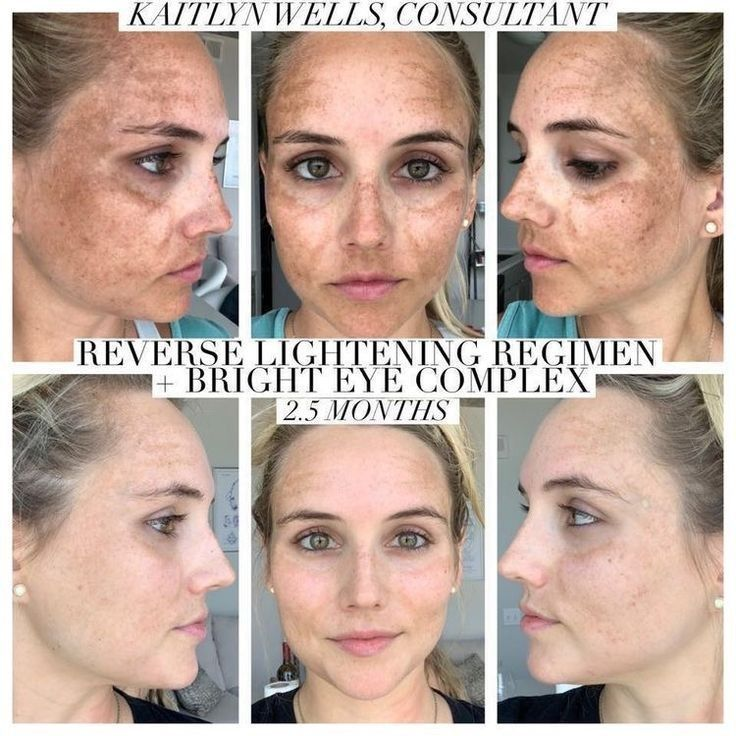 How to get rid of sun damage | Rodan and fields reverse ...