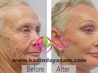 Aspirin yaşlanma karşıtı soyma maskesi