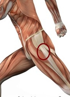 FAWN: good info about hip weakness and running