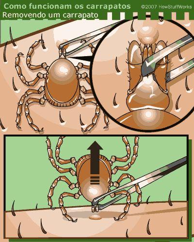 Remova os carrapatos segurando-os com uma pinça pela extremidade mais próxima da pele possível e puxe-os para fora. #infografico