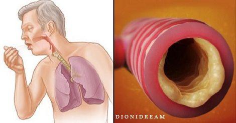 muco bronchi