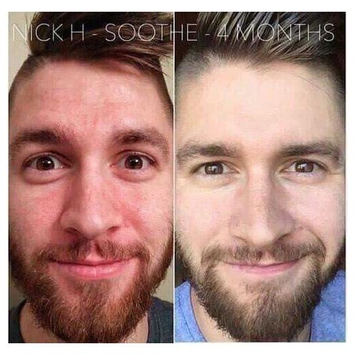Guess what Rodan & Fields works on man skin too!! ♂️I know right crazy !! it might seem like I forget about you guys when I post before and afters but truth is, men have skin too and You also get 60 days to try or send it back empty bottle for a full refund..I know that easy. Message me and lets find out what's right for you!! #RodanAndFields #WorksforMenToo #NumberOneForAReason