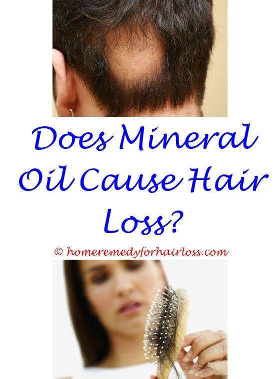17 best Hair Loss Pills images on Pinterest | Beer bottle, Co ...