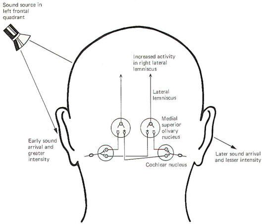 17 best auditory processing disorder images on Pinterest