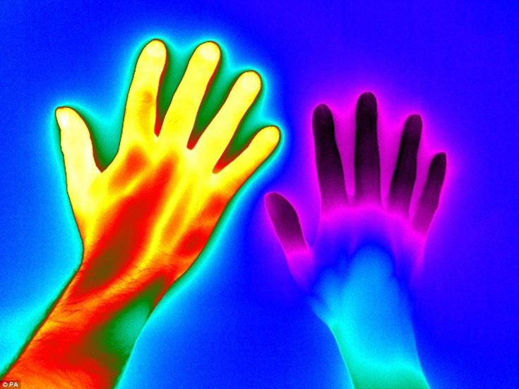 Raynaud's Disease taken by Matthew Clavey from Thermal Vision Research. The hand on the left is from a healthy person, with its bright red colour conveying how it is much hotter than the hand on the right, which is from someone with Raynaud's disease. Sufferers of the diseases have small-blood vessels over-sensitive to changes in temperature