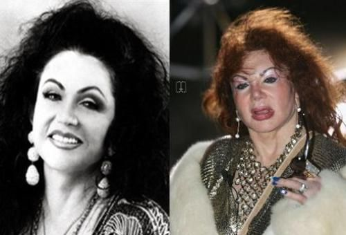 Jackie Stallone Photo Before and After - http://www.celeb-surgery.com/jackie-stallone-photo-before-and-after/?Pinterest