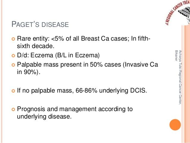normal to Compare disease breast pagets