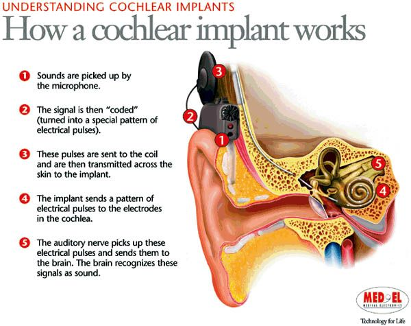 deaf culture and view on cochlear We'll explore the tension in the deaf community over the ethics of implanting deaf children with a cochlear that and in a deaf culture to view pdf documents.