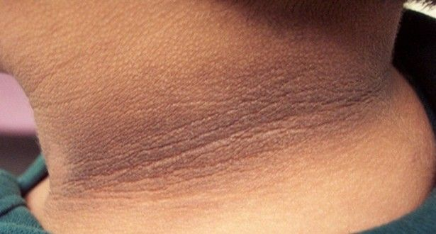 How to get rid of dark skin on neck? Treatment for dark skin on neck. Remedies for darker skin. Remove dark skin. Home remedies for black neck.