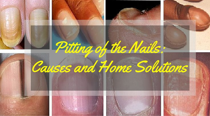 Small depressions on your exterior nail surface is described as pitting of the nails. It is the development of defective layers of superficial and shallow nail plates. Pitting of the nail is more common in females. Fingernails are more prone to this condition as compared to toenails. It is found tha   #Pitting of the #Nails: Causes and Home #Solutions http://healthliving.in/pitting-nails-causes-home-solutions/