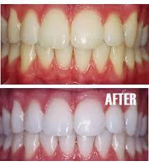 Scoop On Teeth Whitening