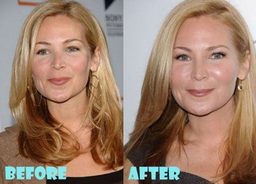 Jennifer Westfeldt Plastic Surgery Before and After Pictures