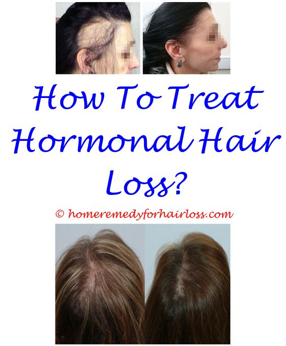 ayurveda hair loss in hindi - reasons for loss of eyebrow hair.scabs and hair loss on dogs ears test shampoo for hair loss hair loss formula 6124915867
