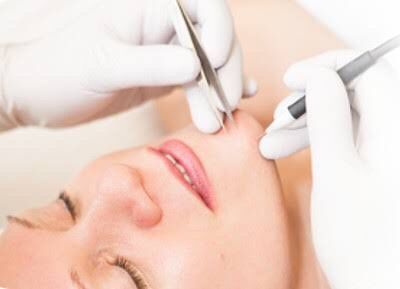 Understanding different hair removal methods pc beyondelectrolysis.com