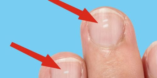 Heres what those white marks on your nails say about your...