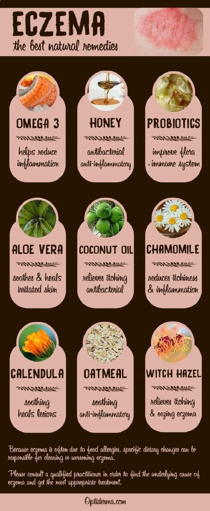 remedios naturales para el eczema