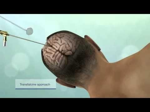 Лечение опухоли головного мозга в Израиле http://www.medicaltourisrael.com/?p=681 Минимально инвазивная операция удаления опухоли головного мозга за рубежом в израильском центре онкологической нейрохирургии.