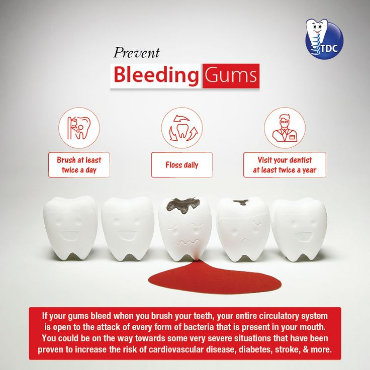 PREVENT BLEEDING GUMS Brush at least twice a day Floss