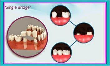 A Single 3-Tooth Bridge #Dentaltown #Dentist #Dentistry #HowardFarran Please follow me at: Dentaltown www.Dentaltown.com/HowardFarran Google Plus https://plus.google.com/+HowardFarranDDS Pinterest http://www.pinterest.com/howardfarran/ LinkedIn http://www.linkedin.com/in/drhowardfarran Facebook https://www.facebook.com/drhowardfarran Twitter https://twitter.com/HowardFarran YouTube https://www.youtube.com/HowardFarran Today's Dental www.TodaysDental.com