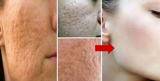 6 rimedi naturali per chiudere i pori del viso | Rimedio Naturale