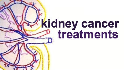 There are four types of kidney cancer: renal cell carcinoma, transitional cell carcinoma, sarcoma, and wilms tumor.