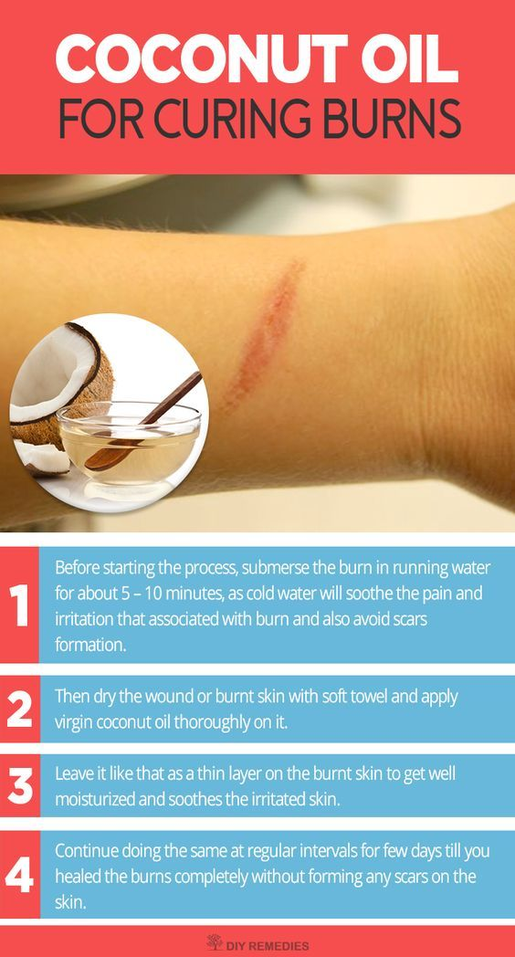 Is Coconut Oil good for Burns?  Yes, of course it works well for treating burns and it is mostly commonly used as a topical treatment for burns in most of the coconut cultivated countries. Method – 1: (Coconut Oil)  This process uses coconut oil alone for treating burns and its symptoms.
