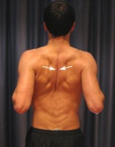 Upper Back Stretches - Shoulder blade Squeezes. For those with back pains. Brought to you by Shoplet.com - everything for your business.
