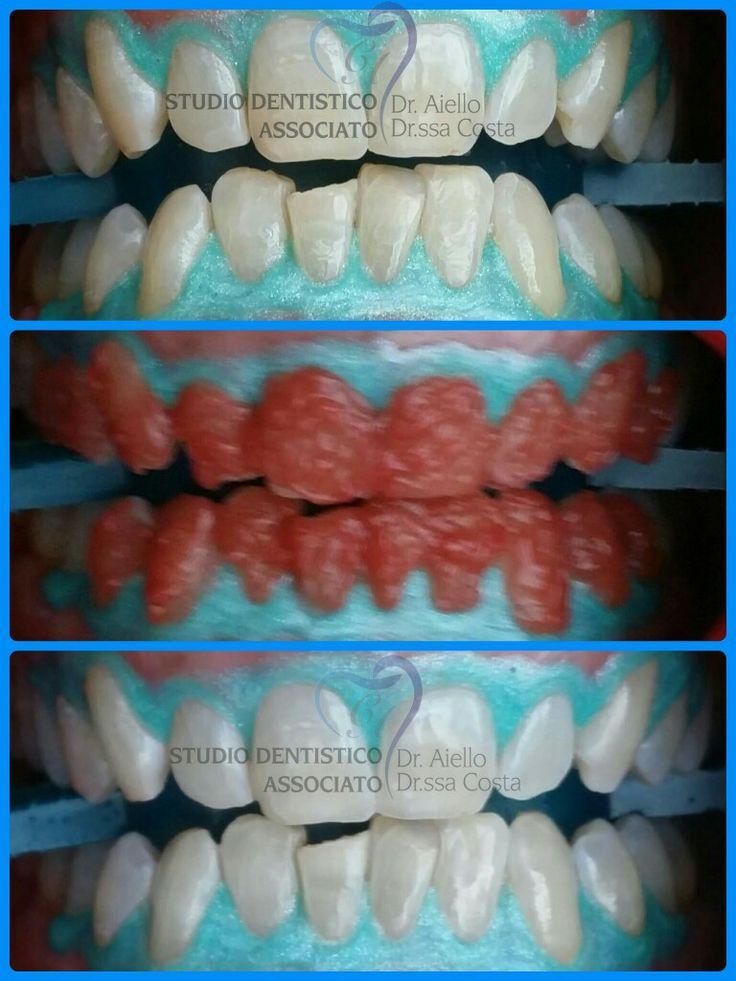Lo Sbiancamento Dentale è un trattamento estetico molto richiesto; come tale ha ormai assunto una notevole rilevanza sia in ambito domestico che in quello professionale. Denti Bianchi e sani rappresentano infatti una delle caratteristiche estetiche più ambite e ricercate.