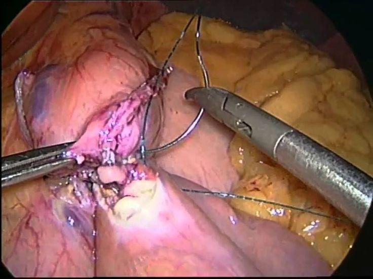 Maagverkleining: Gastric Bypass operatie (maagomleiding) Slotervaartziek...