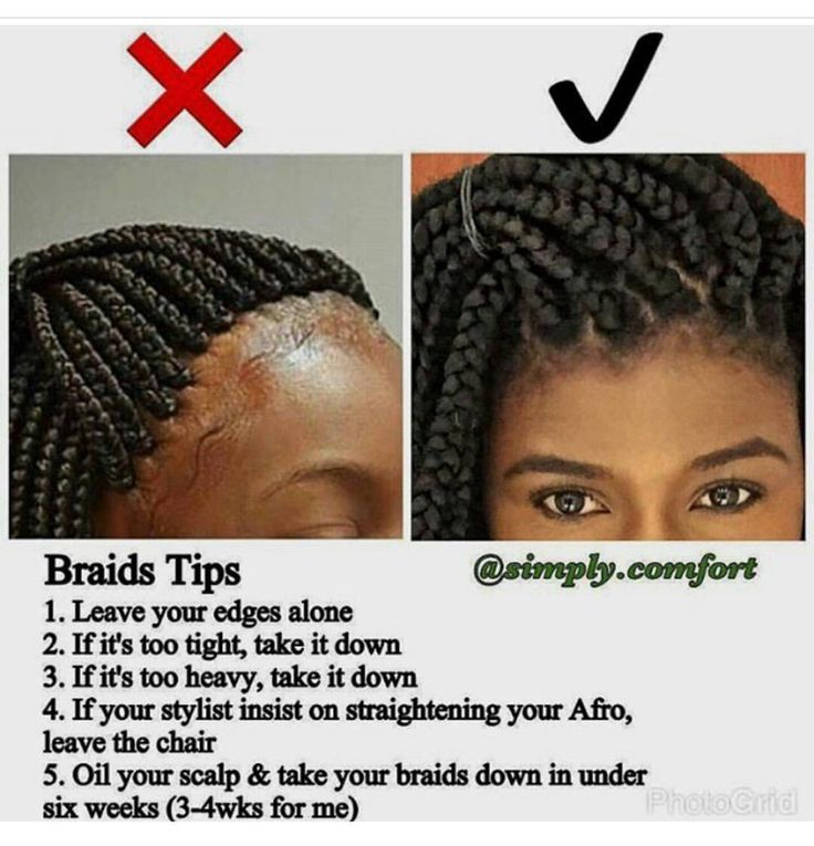 Don T Ever Let Them Braid Your Fragile Edges You Can Lay