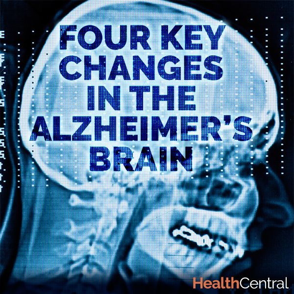 The brain is the most complex organ in the body. It is made up of over 90 billion cells. Alzheimer's, a degenerative disease of the brain causes huge damage to the brain.   See more at: http://www.healthcentral.com/alzheimers/c/57548/168377/key-alzheimer-brain/?ap=2012