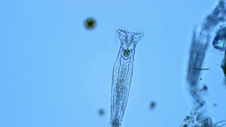 Whirling like a wheel | BA310E with Moticam 580 | Rotifers are microscopic aquatic animals of the phylum Rotifera. Rotifers can be found in many freshwater environments and in moist soil, where they inhabit the thin films of water that are formed around soil particles. Read more at http://moticeuropeamericasblog.blogspot.com.es/2017/02/whirling-like-wheel.html #Rotifer  #BA310E #DigitalCamera #DigitalMicroscopy #microscope #microscopy #motic #moticam #moticam580 #UprightMicroscope