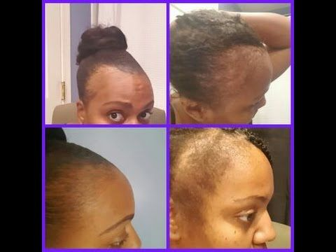 REGROW YOUR BALD HAIR FAST/ TREAT THIN AND BALD HAIR - YouTube
