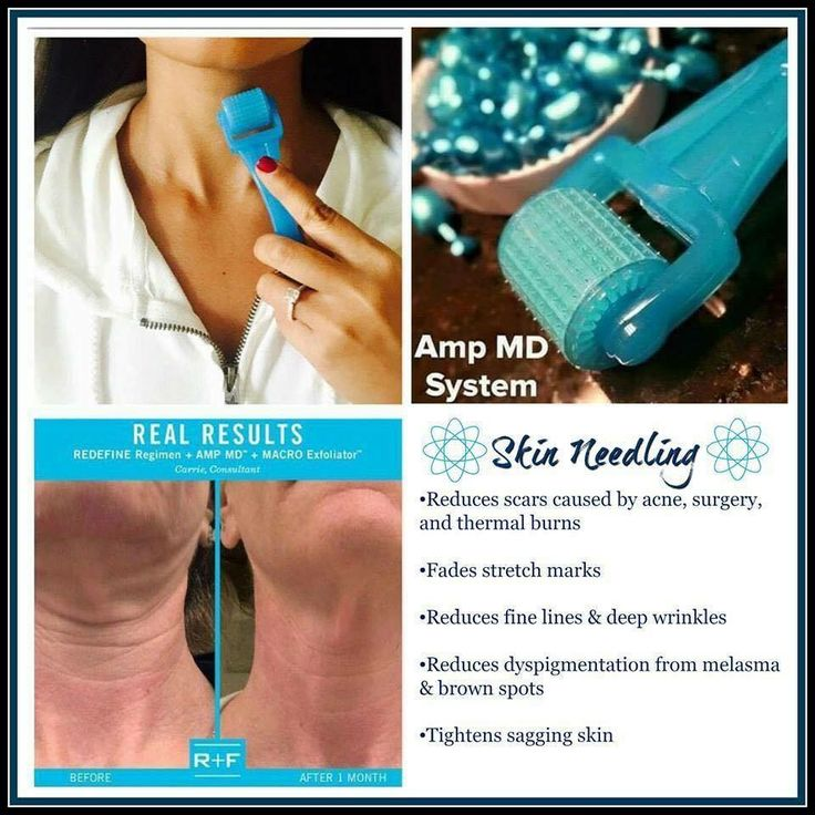 """NEWS FLASH:  By the age of 30, our collagen production slows by 1% each year -- Around age 40, collagen deteriorates faster than it can be produced.  Rodan+Fields Redefine AMP MD Roller has """"little needles"""" that help the skin build back the collagen. The tiny blue capsules - Night Renewing Serum - contain peptides and retinol. Paired together, the AMP MD Roller and serum have been clinically proven to safely and effectively amp up your daily skincare routine for a firmer, mor"""