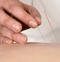 #Acupuncture works by stimulating points along the meridian channel system of the body. When thin, sterilized needles are inserted into these acupuncture points, they help correct the flow of energy, Chi or Qi, to restore #health.
