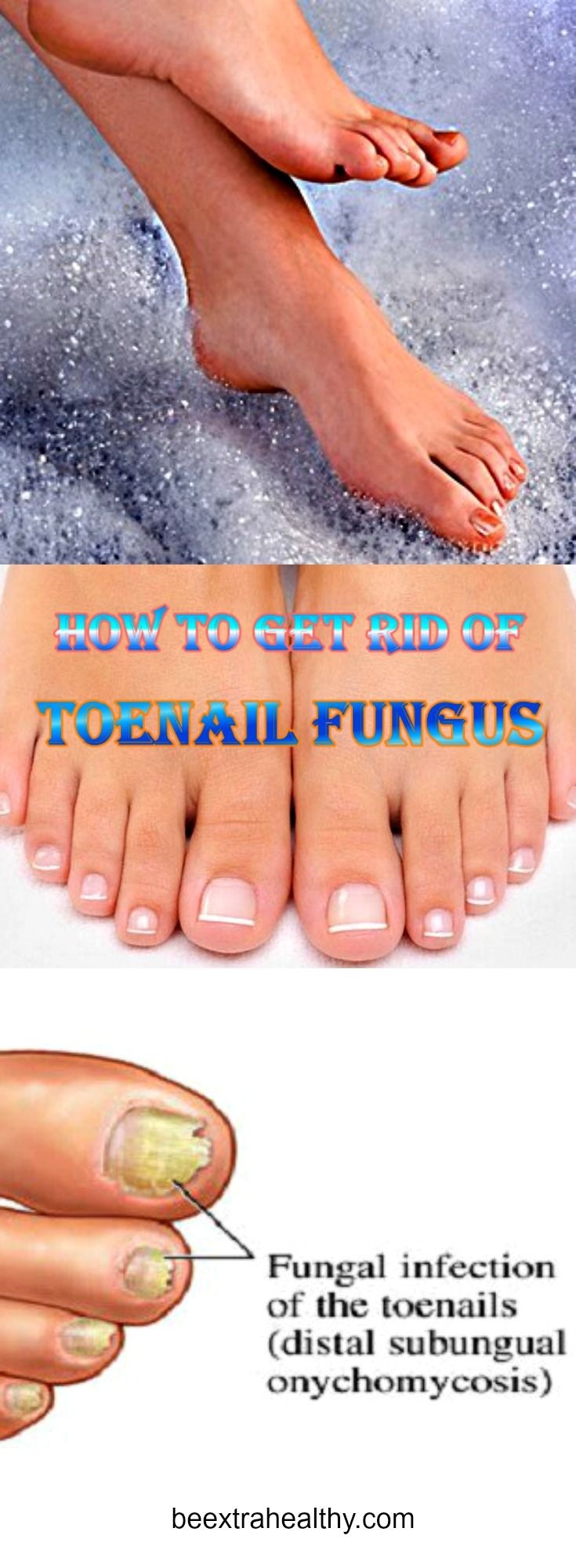 Here's How to Get Rid of Fungal Infections of the Feet