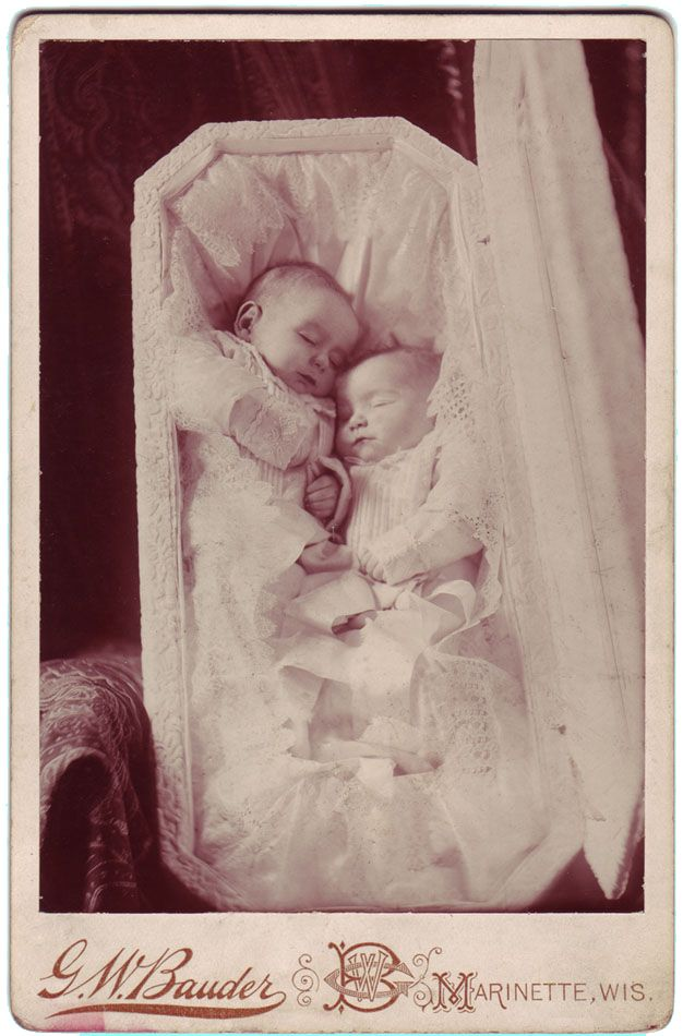 Victorian baby twins, post mortem