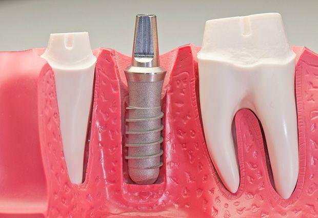 Dental Implants #dentistry #oralhealth