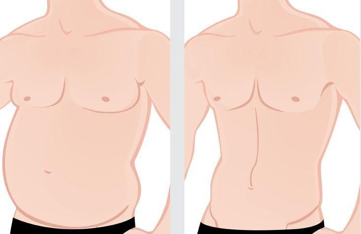 Abdominoplastia masculina Madrid - Dr. Diaz Infante