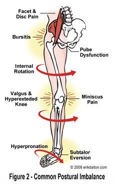 Muscle imbalance!  this type of muscle imbalance is seen almost exclusively in females. usually with slender legs / bodies.