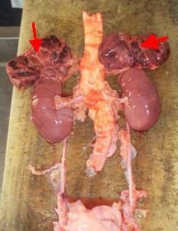 Es un trastorno cuando las glándulas suprarrenales no producen las suficientes cantidad de hormonas resulta de un daño a la corteza suprarrenal, lo cual hace que dicha corteza produzca niveles hormonales demasiado bajos. Este daño puede ser causado por lo siguiente: •El sistema inmunitario ataca por error las glándulas suprarrenales (enfermedad autoinmunitaria)•Infecciones como la tuberculosis, VIH o infecciones micóticas•Hemorragia dentro de las glándulas suprarrenales•Tumores