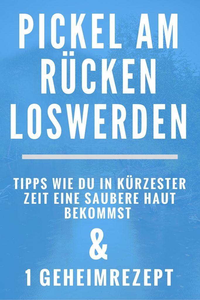 Was hilft gegen Pickel am Rücken? :http://www.kraftpuls.com/was-hilft-gegen-pickel-am-ruecken/